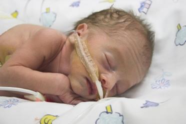 premature babies photos
