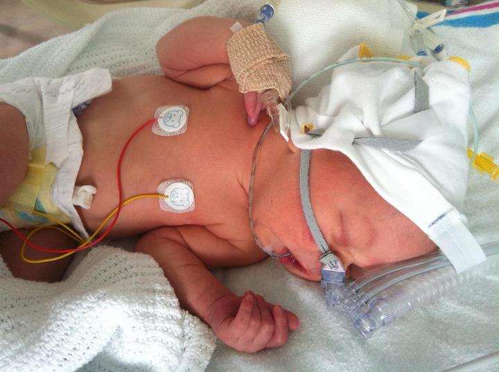 steroid breathing treatment for babies